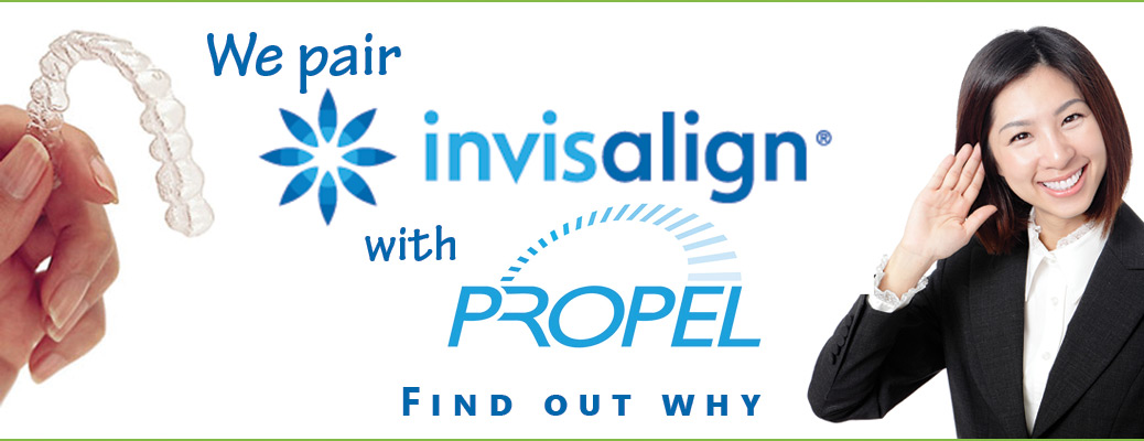 invisalign/propel together